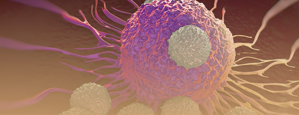 The Right Cell Culture Media Can Help Your NK Cell Therapy Progress to the Clinic